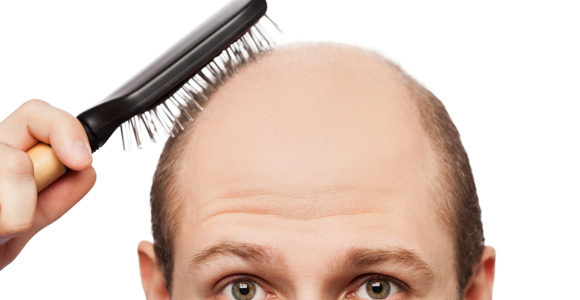 Hair loss vitamin mineral deficiency