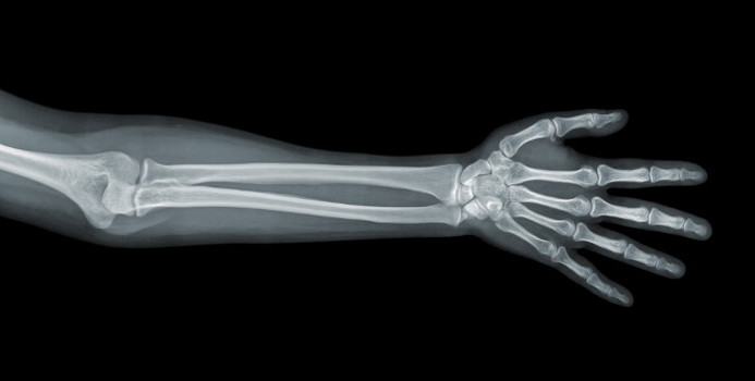 bone health_000020717921_Small.jpg