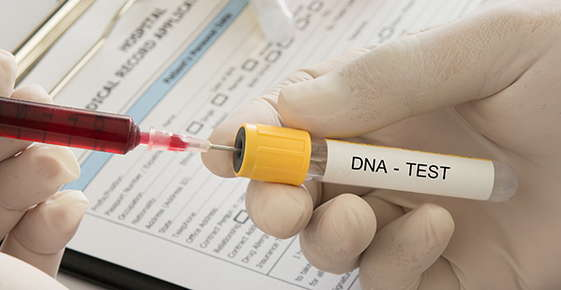 Image of a DNA sample.