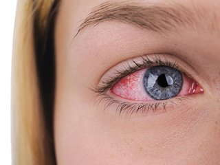 Image of a girl with pink eye.