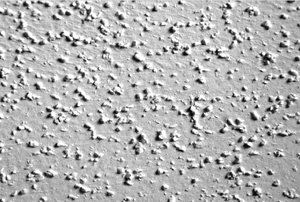 A close-up of a popcorn ceiling.