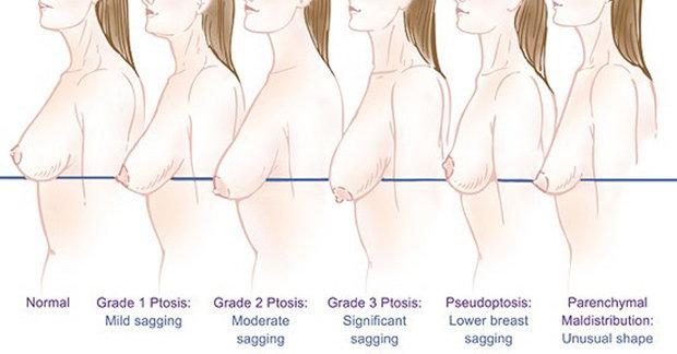 Grading breast ptosis (sagging breasts)