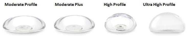 Implant Profiles: Moderate, Moderate Plus, High Profile, Ultra High Profile