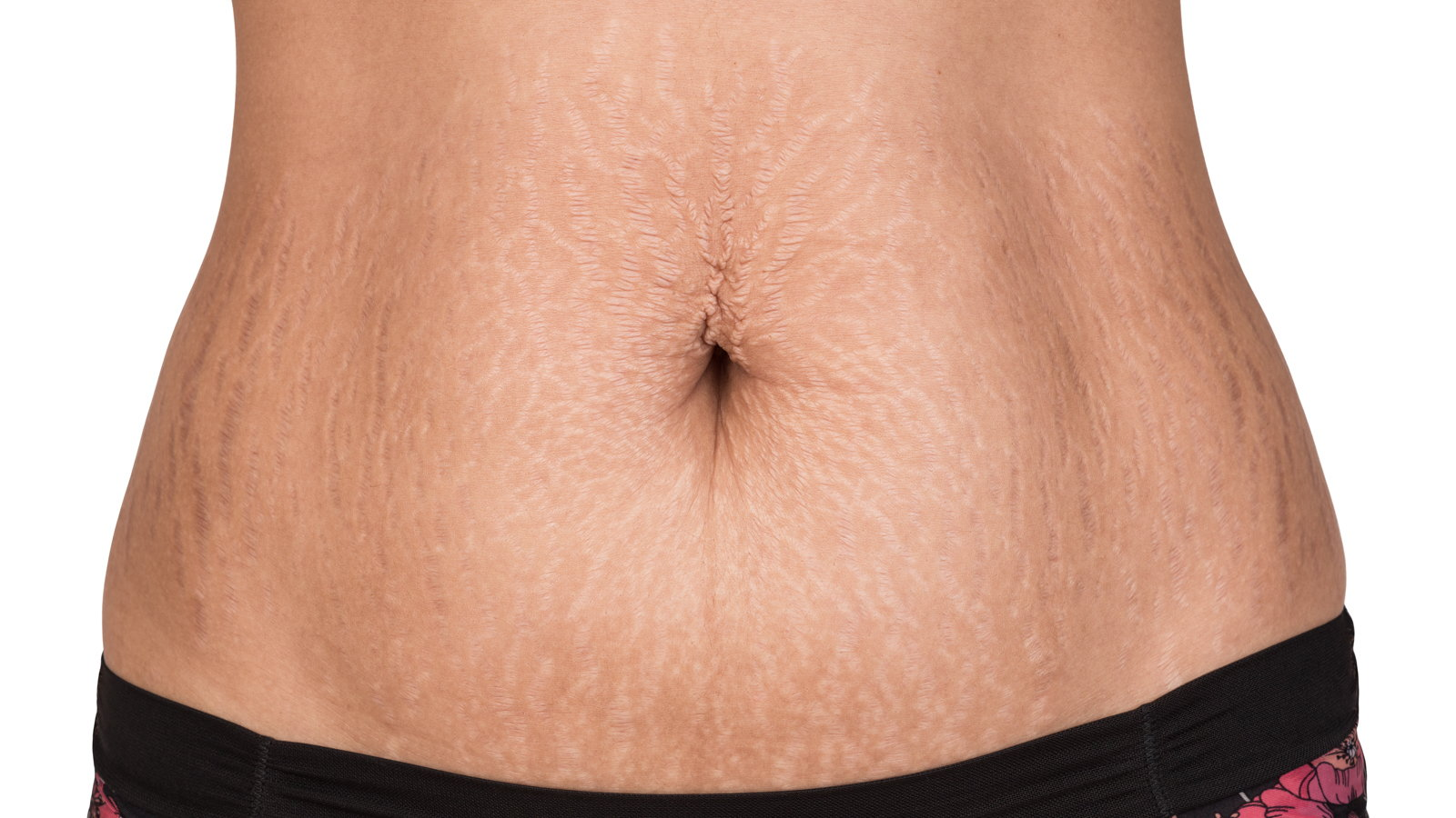 stomach with stretch marks