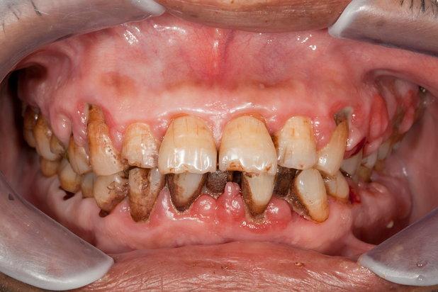 binge drinker with periodontal problems