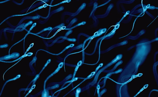 sperm vasectomy Malformed reversal after