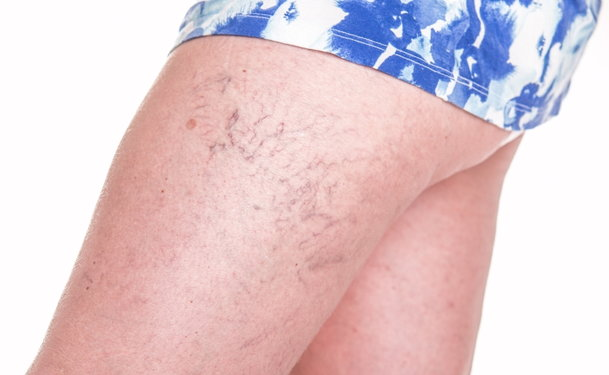 foam treatment for varicose veins
