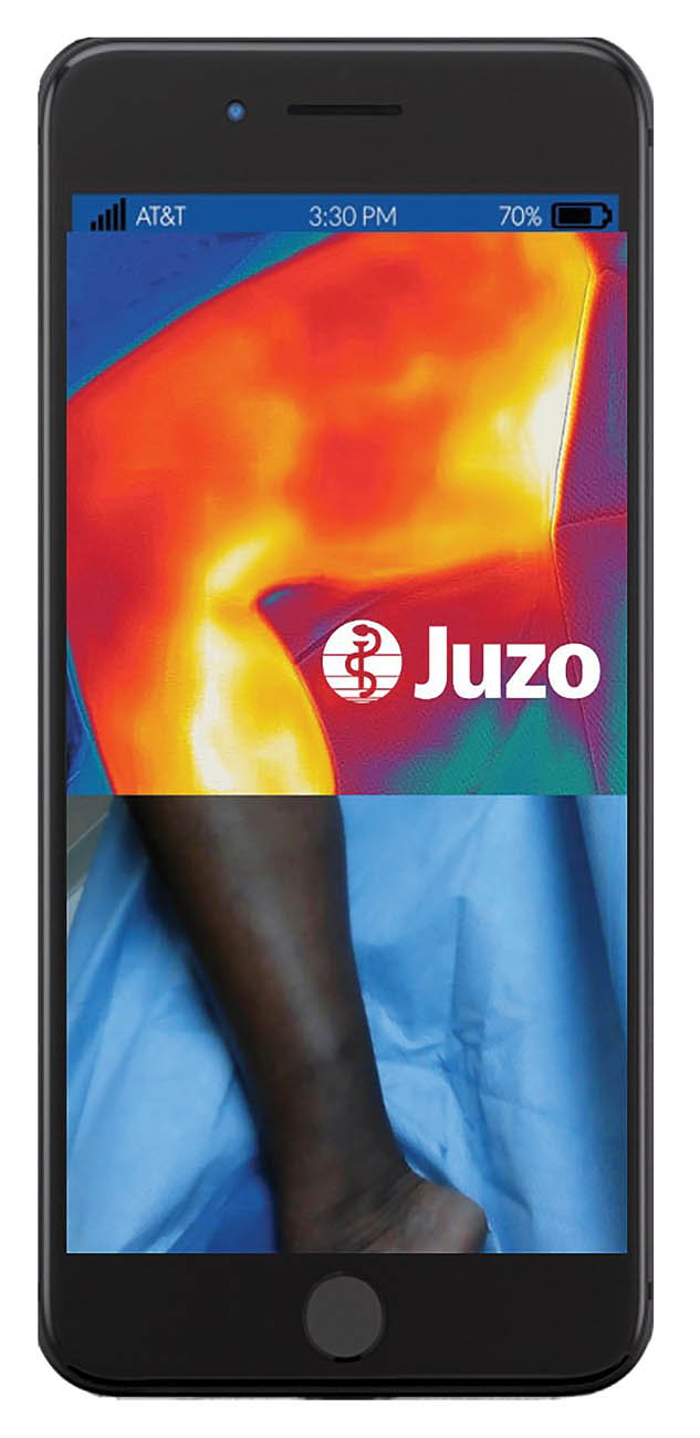 USA Therm partnered with international compression company Juzo, to help bring ThermPix to the world.