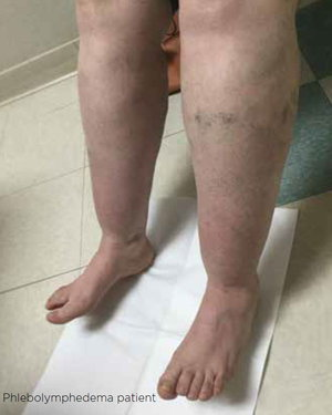Phlebolymphedema patient