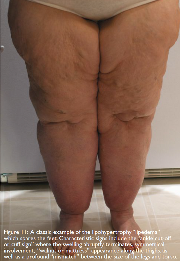 Patient with lipedema
