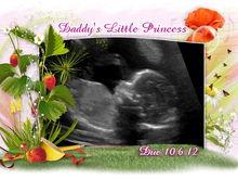 Untitled Album by AlexKatieAiden Mommy - 2012-05-30 00:00:00